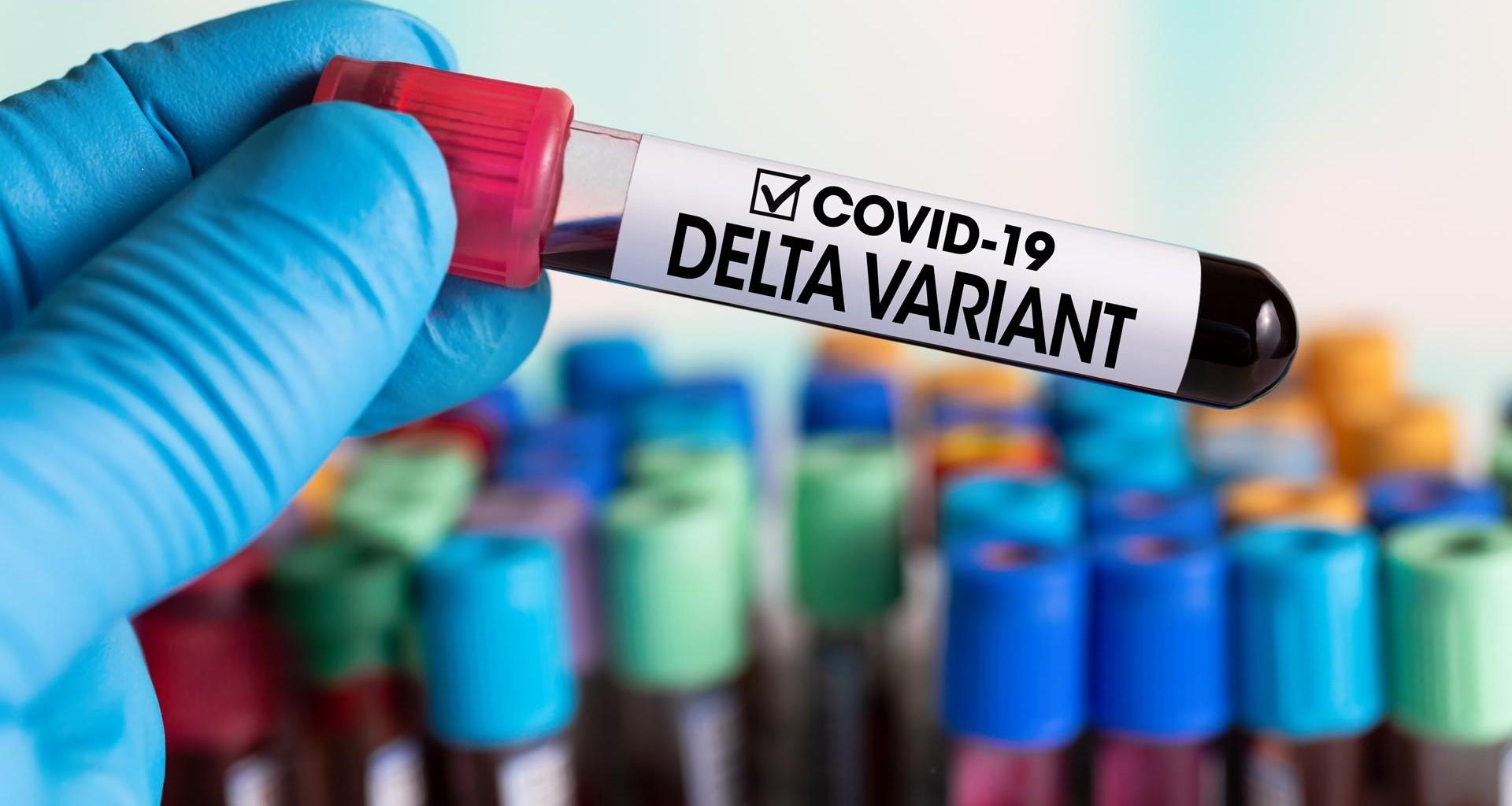 Se confirma circulación de variante Delta en el Huila. - Noticias de Colombia